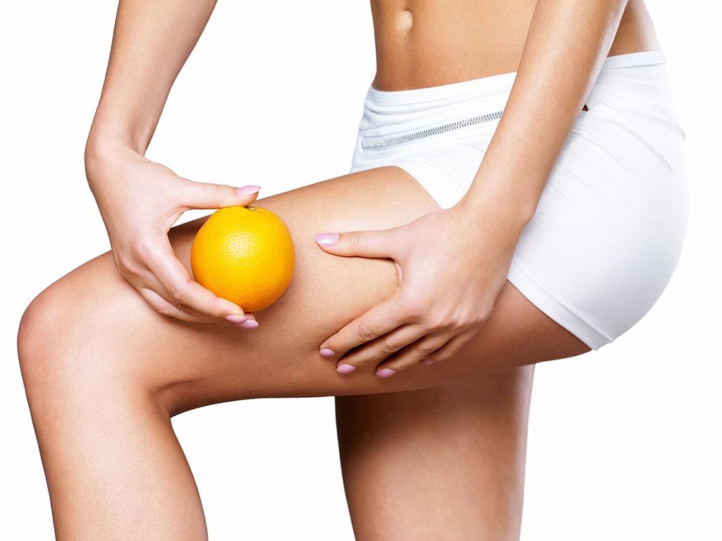 A narancsbőr nők millióinak életét keseríti meg